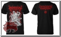 EMBRYECTOMY - Chainsaw Laceration... (XL) TS
